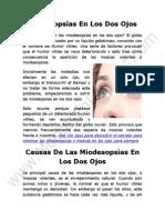 Miodesopsias En Los Dos Ojos Como Eliminarlas