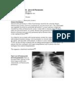 Parasitic Disease(Pheumoystis  jirovecii Pheomonia)