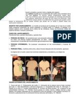 Trabajo de Asficcia Por Ahorcamiento y Extrangulación