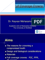 Posterior Crowns KM