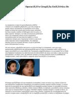 Rinoplastia Operación Cirugía Estética De Nariz Granada.