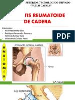 Artritis de Cadera