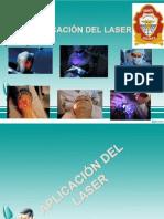 Aplicacion Del Laser