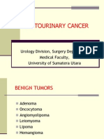 Tumor of Urology