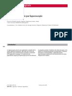 appendicectomie laparoscopica