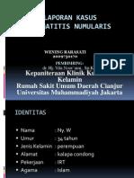 Lapkas 1 Dermatitis Numularis (Dr.vita Noor'Aini a.H., Sp.kk)