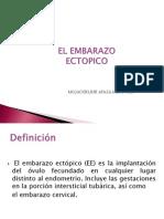 Ectopico Obstetricia III