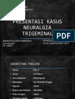 Presentasi Kasus Trigeminal Neuralgia