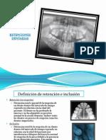 retenciones dentarias