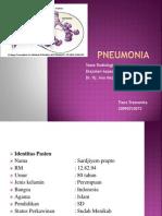 Ppt Pneumonia Radiologi