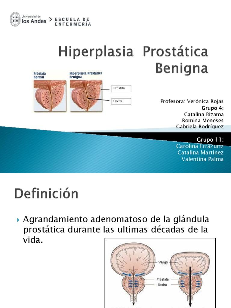 hiperplasia adenomatosa de la próstata