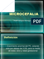 MICROCEFALIA.pptx