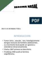 angiofibroma.ppt