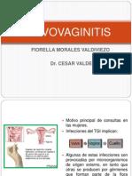 VULVOVAGINITIS EXPO DR. VALDERRAMA.pptx