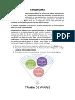 HIPOGLUCEMIA monografia.docx