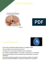 tumores-cerebrales-1210487477563807-8.pdf
