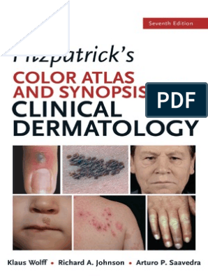 Fitz Atlas 7e Toc and Sample Chapters | Psoriasis | Cutaneous Conditions