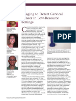 Imaging to Detect Cervical Cancer in Low-Resource Settings by MobileOCT in Oncology News