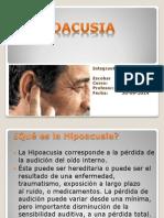 HIPOACUSIA.pptx
