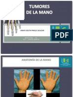 tumoresdemano (1).pptx