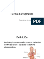 Hernia diafragmática.pptx