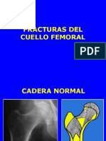 02- Fract ext sup femur.ppt