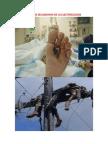 EFECTOS SECUNDARIO DE LA ELECTROCUCION.pdf