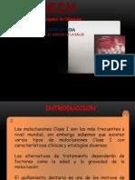 OCLUSION CALSE I.pdf