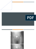 cadera 1.pptx