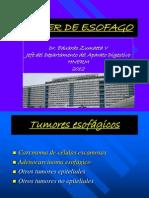 cancer de esofago.ppt