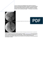 Bile Duct Stricture