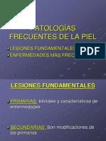 PATOLOGÍAS FRECUENTES DE LA PIEL.ppt