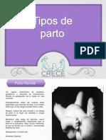 Presentación3 partos.pptx