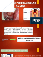ABSCESO ALVEOLAR AGUDO (4).pptx