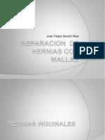 REPARACION  DE HERNIAS CON MALLAS.pptx