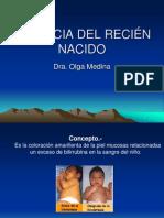 ICTERICIA DEL RECIÉN NACIDO.ppt