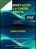 0 clase CARIES_DENTAL.pptx