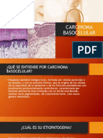 CARCINOMA BASOCELULAR.pptx