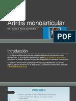 Artritis monoarticular.pptx