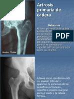 Artrosis de cadera.ppt