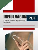 Inelul Vaginal