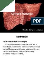 cirrosis presentacion .ppt