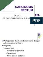 Adeno Carcinoma Rectum