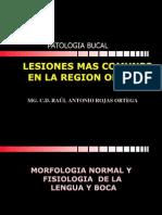 6TA.LESIONES MAS COMUNES EN LA REGION ORAL.pdf