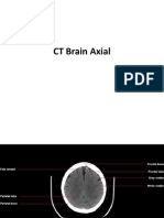 CT Scan of Brain