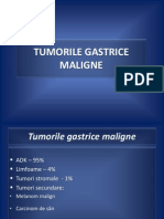 Tumorile Gastrice Maligne