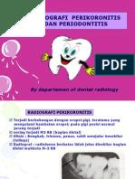 Yyy Perikoronitis Periodontitis Oke