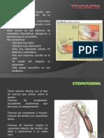 tendinitis luis gil.pptx