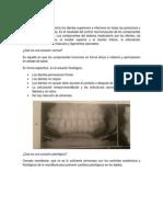Qué es oclusión (1).docx