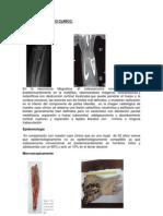DISCUSION DEL CASO CLINICO.docx
